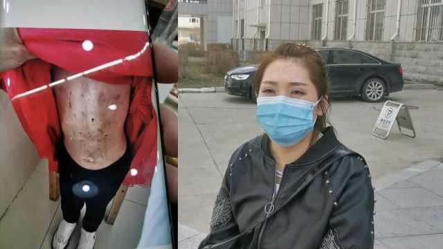 黑龙江被虐女童病情有好转,生母:已收到7万捐款, 感谢好心人