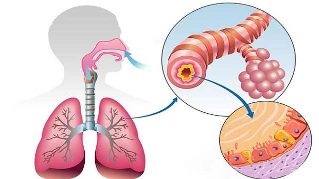 第6节:咳嗽与咳痰时,如何判断为上呼吸道感染?