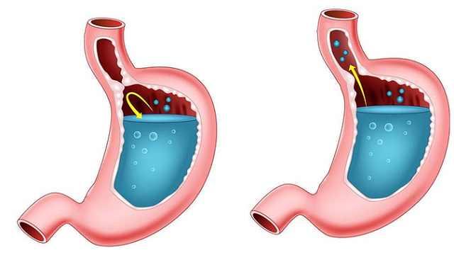 第10节:胃食管反流病的诊断要点