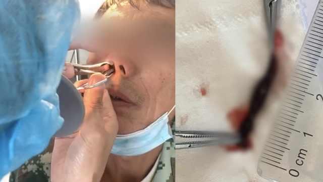 男子鼻子里取出3cm蚂蟥不停蠕动,称两周前山上喝生水所致