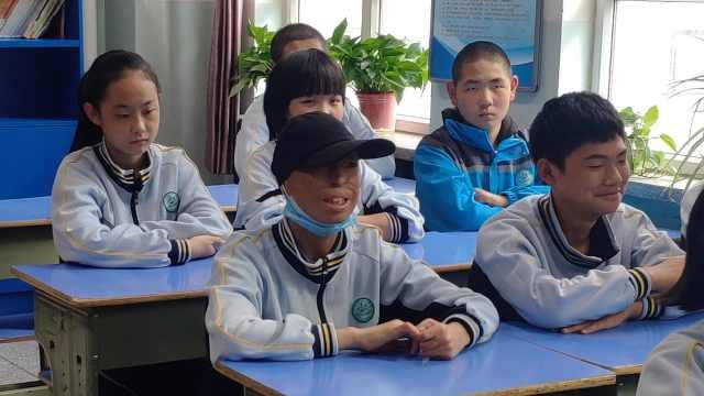中国版奇迹男孩!烧伤男孩生日致谢师生,父亲曾卖头皮救子