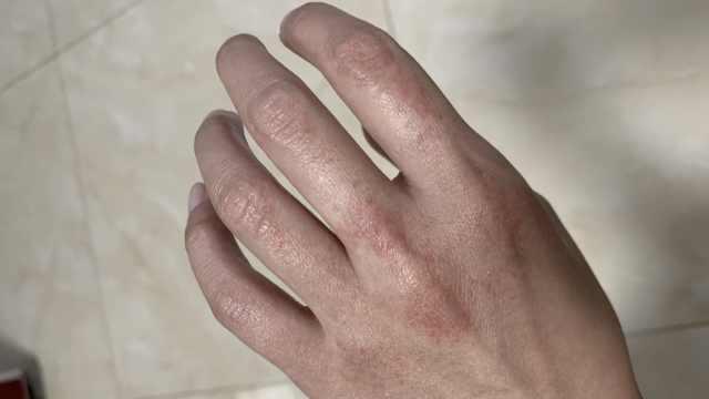 护士每天洗手百次致皮肤粗糙开裂,只为防止新生宝宝交叉感染