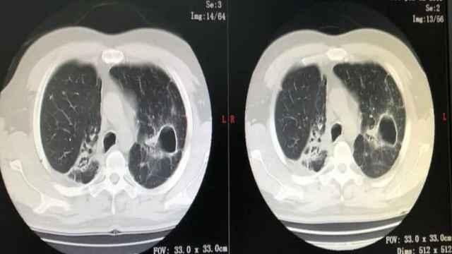 咳咳咳!新冠肺炎还是肺结核?