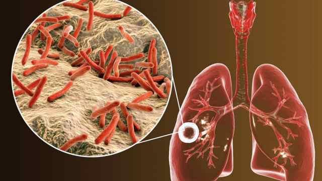 肺结核能治好吗?医生要求遵循5原则