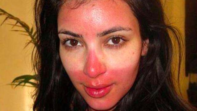 原来防晒产品选错了这么伤害皮肤!