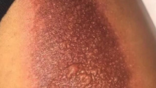 闪光手机壳可能会造成皮肤灼伤