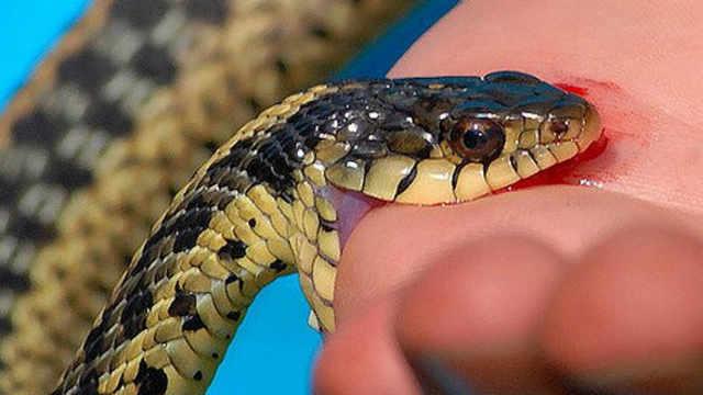 在野外,被毒蛇咬伤怎么办?