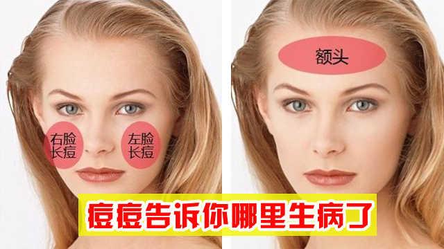 脸上不同部位长痘痘是什么原因?