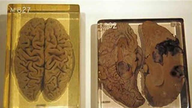 研究爱因斯坦大脑却不研究特斯拉?
