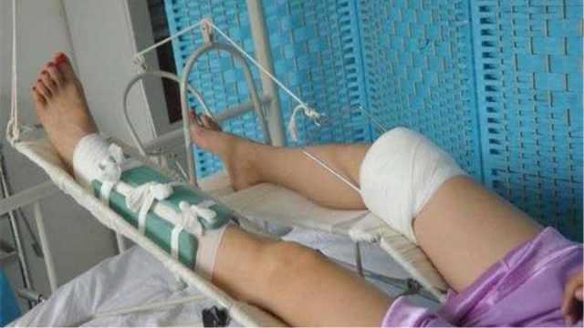 人骨折了去医院是打石膏还是打钢板