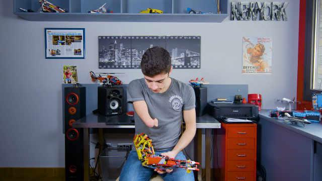 身残志坚,小伙用玩具做成假肢