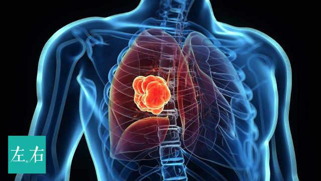 年轻人得肺癌的原因是什么?
