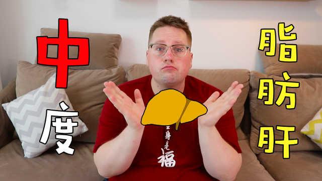我有中度脂肪肝,但我还是不想减肥